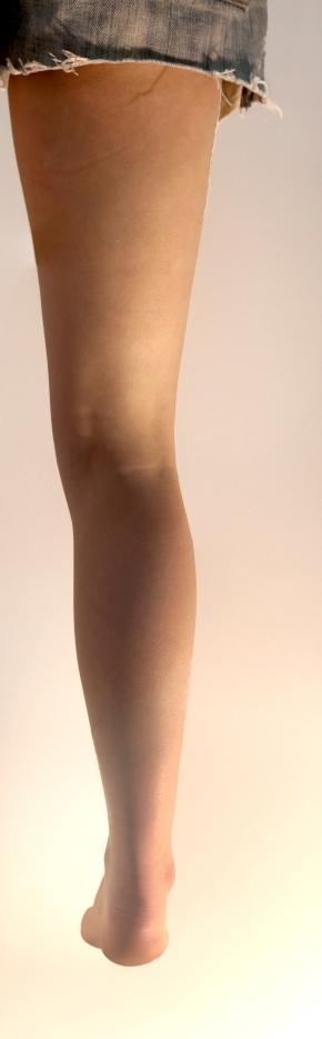 Anomalous Leg